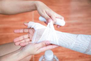 person getting burn injury bandaged